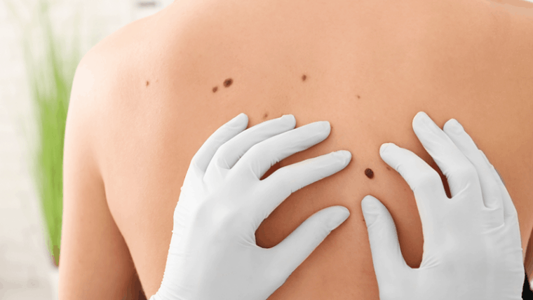 Skin Cancer Awareness Month – May 10, 2020