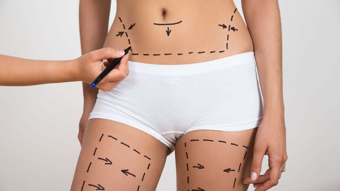 Body Cosmetic Procedures