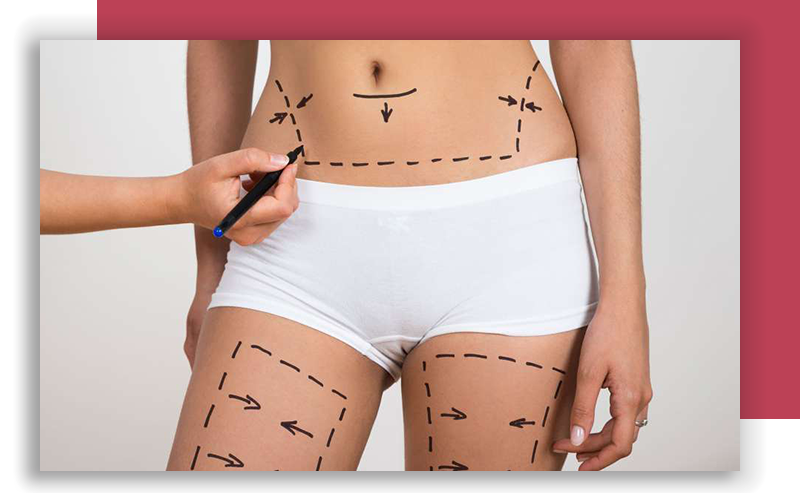 Tummy tuck Liposuction Arm lift Labioplasty procedures Lincoln Park IL