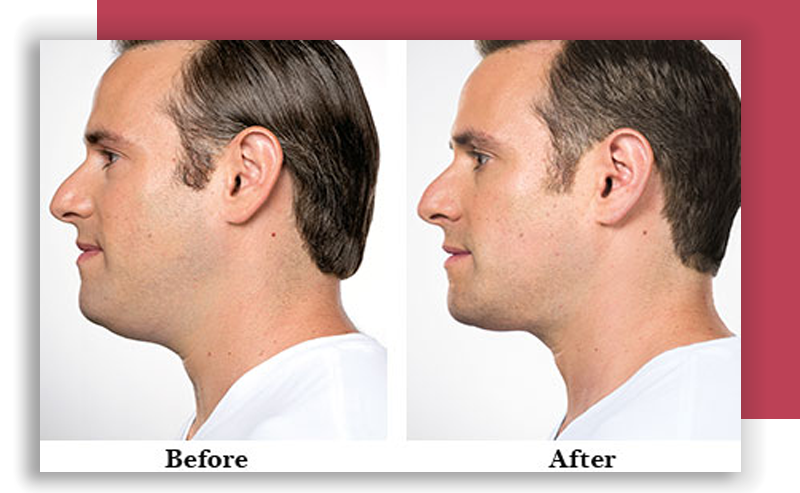 Kybella skin injection treatment Lincoln Park IL