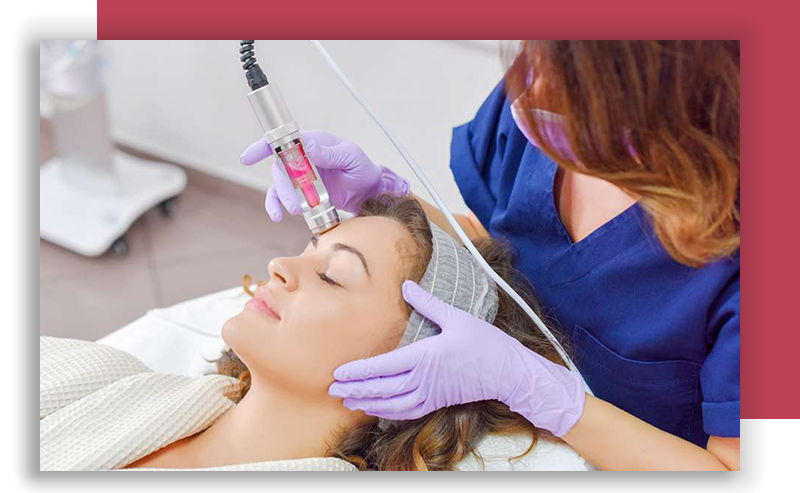 Lumecca IPL light therapy Lincoln Park IL