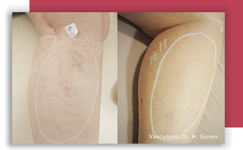 Vasculaze vein laser treatment Lincoln Park Illinois